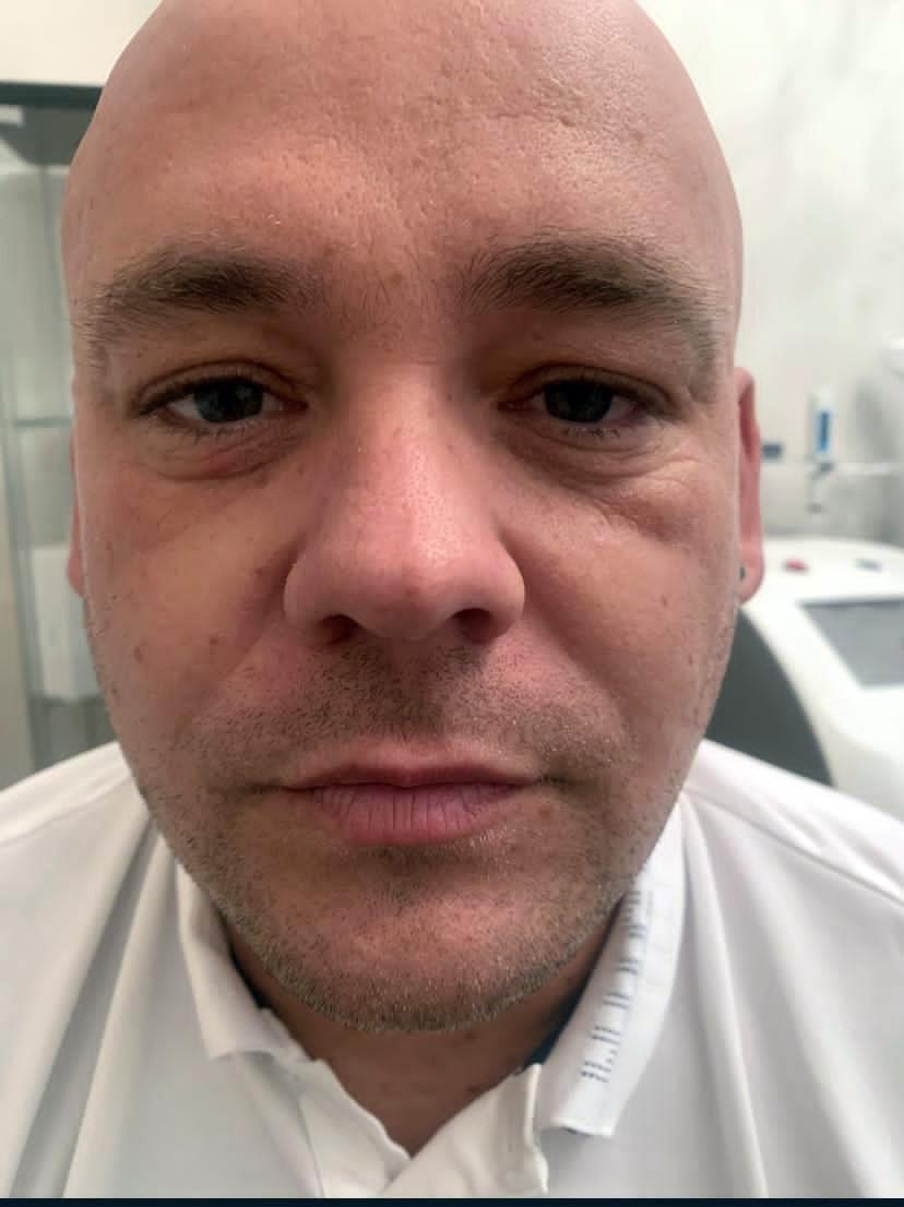 Lower Blepharoplasty Before Surgery